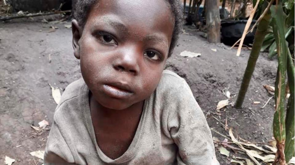 Hungersnot und Krankheit in Afrika